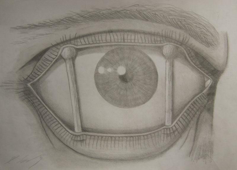 Eye-brace
